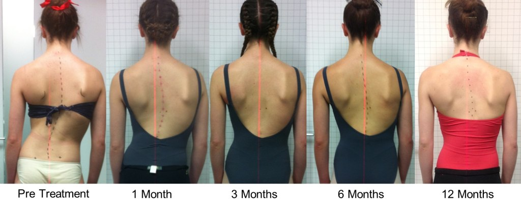 scoliosis effects and treatments to related